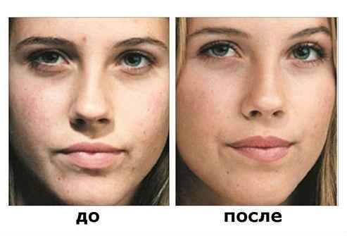 До и после применения салициловой кислоты