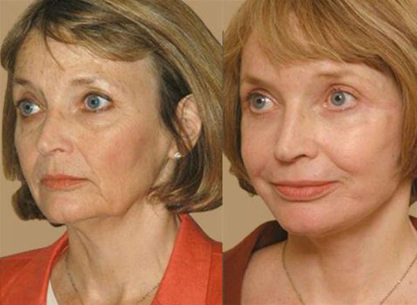 До и после срединного пилинга