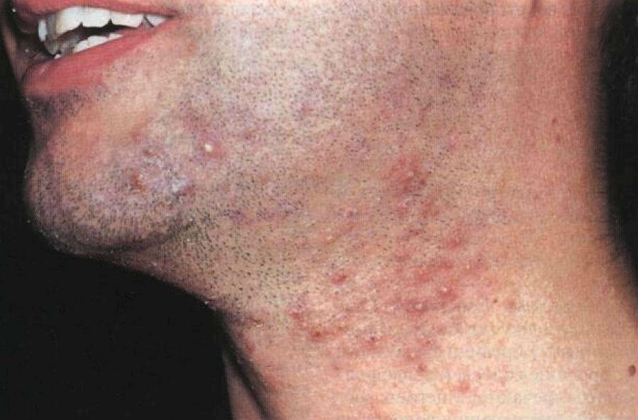 Сыпь на лице у мужчин