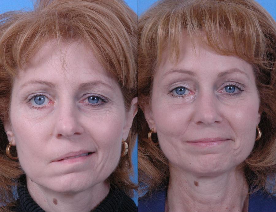 Мышцы лица колит к чему thumbnail