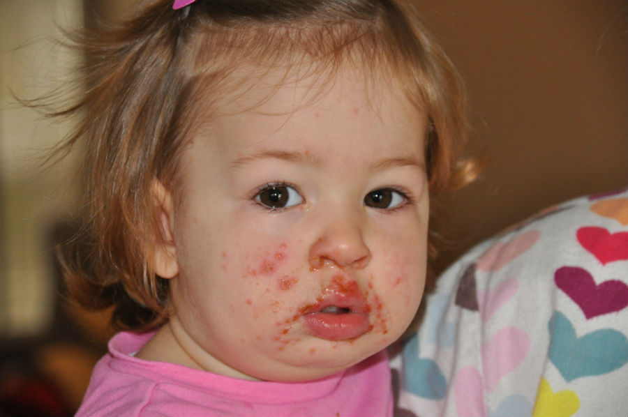 Сыпь на лице у ребенка