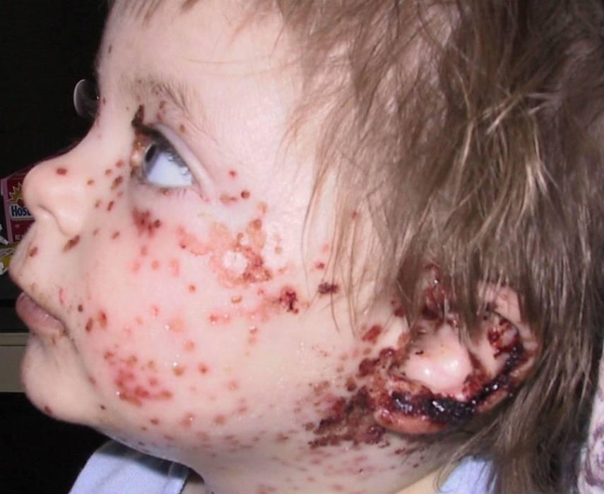 Герпетическая инфекция