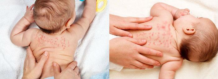 Сыпь на спине у младенца