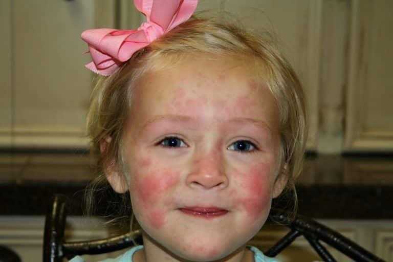 Красная сыпь на лице у ребенка