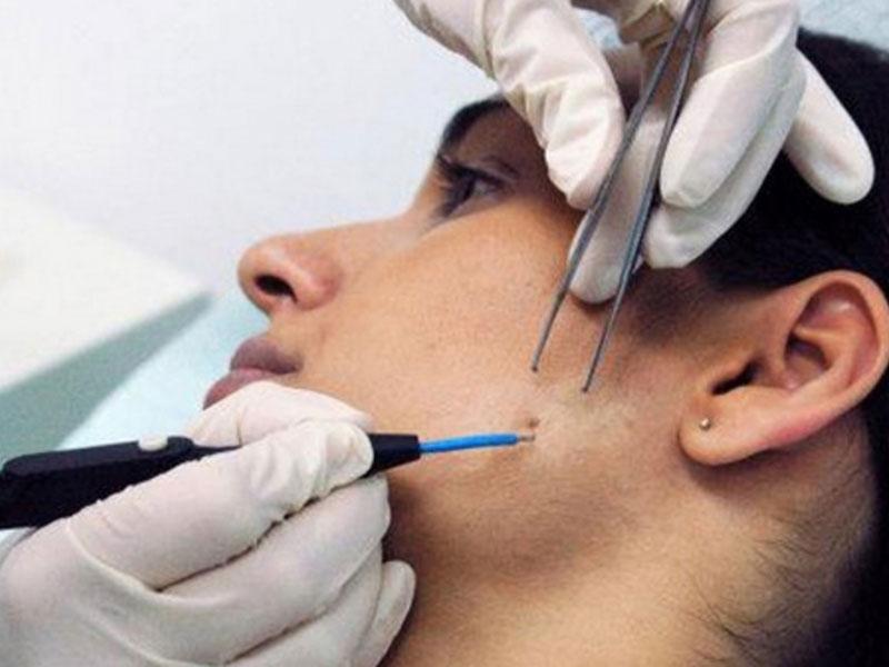 Удаление образований на лице аппаратным способом