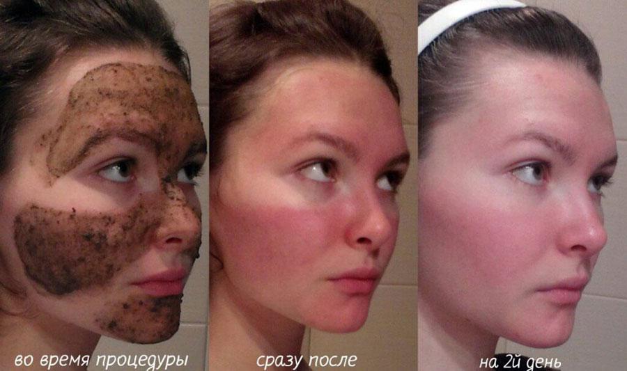 Применение маски из бадаги для лица
