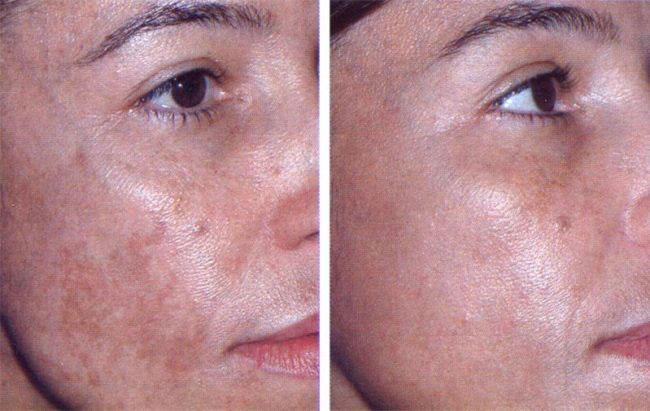 Кожа лица до и после лечения