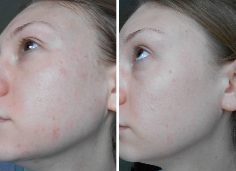 Кожа до и после применения Клензита