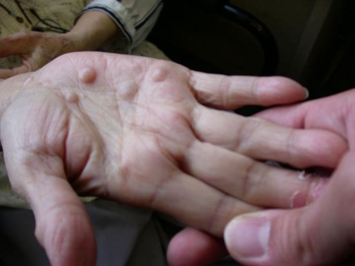 Кисты на кистях рук