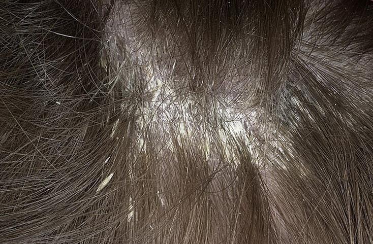 Белые чешуйки на коже головы