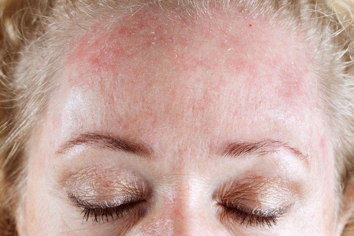 Аллергическая сыпь на лбу