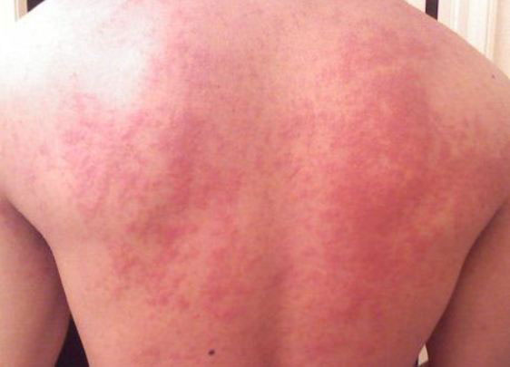Мелкая сыпь на спине