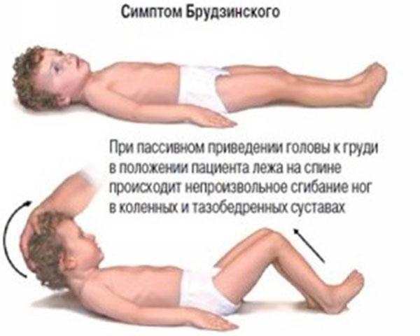 Симптом Брудзинского
