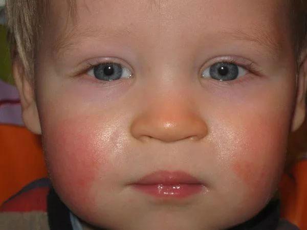 Краснота лица у ребенка