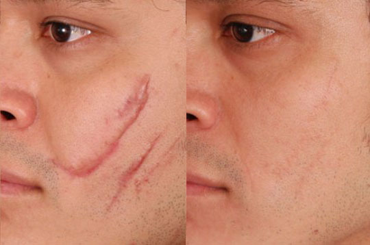 Рубец до и после лечения