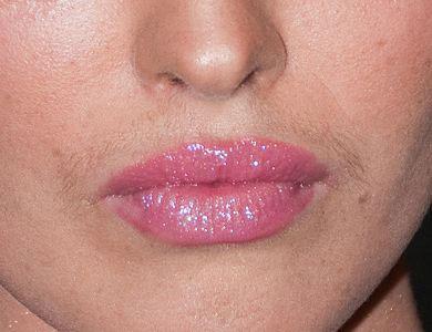 Рост волос у женщины над верхней губой