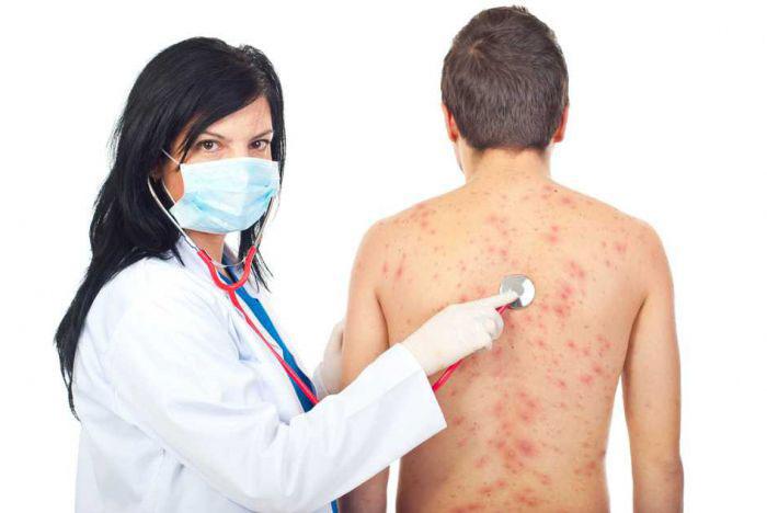 Пациент с сыпью на приеме у врача