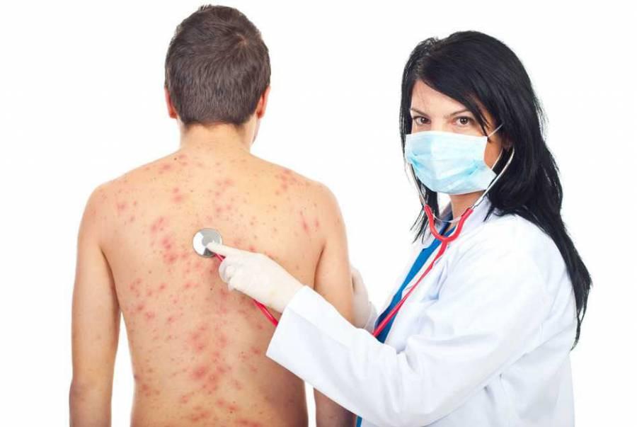 Врач осматривает пациента с сыпью