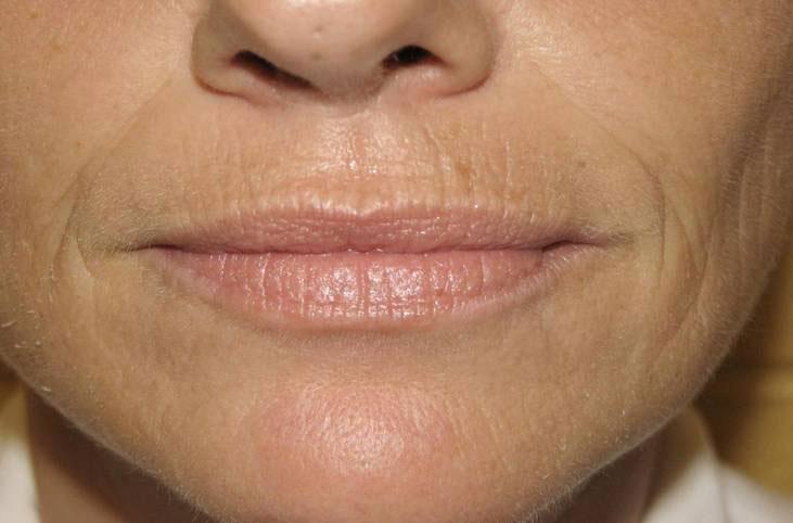 Возрастные изменения в зоне вокруг рта