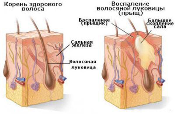 Воспаление волосяной луковицы