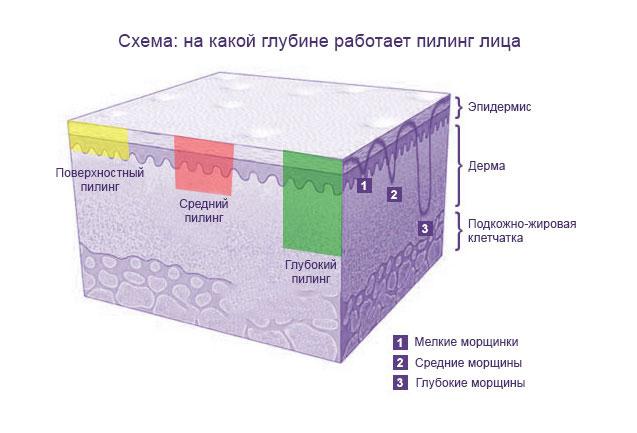 Схема глубины пилинга