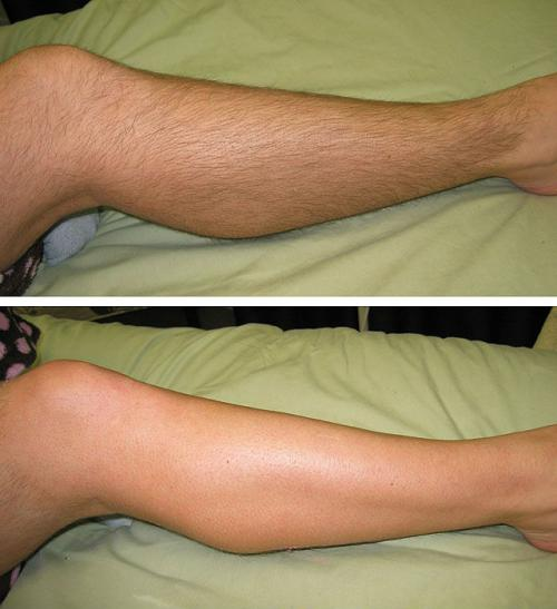 эпиляция воском: до и после
