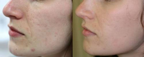 До и после применения геля Далацин