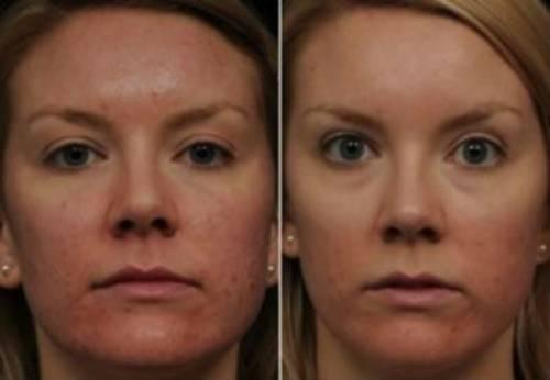 До и после лечения прыщей доксицисклином