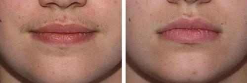 До и после фотоэпиляции
