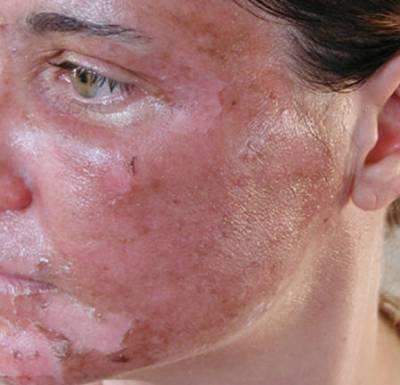 Химический ожог лица при глубоком пилинге