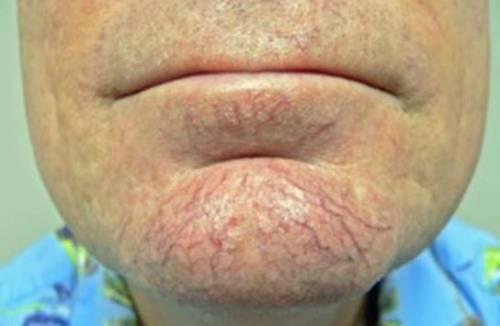 Купероз кожи лица