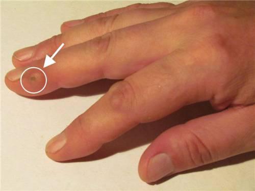 Мозоль на пальце