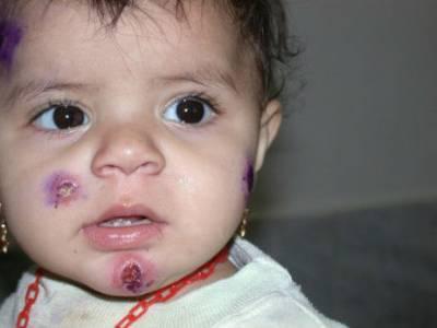 Лейшманиоз кожи у ребенка