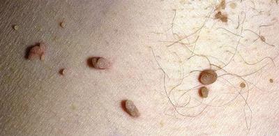Пигментированные папилломы на коже