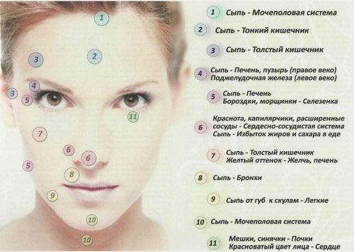 Значение прыщей на лице