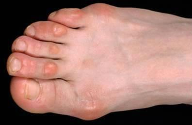 Сухие мозоли на пальцах