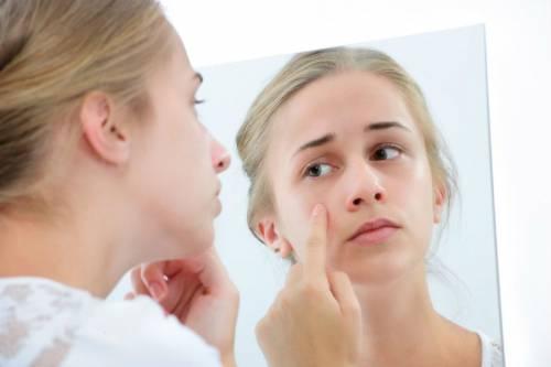 Сыпь на лице у подростка