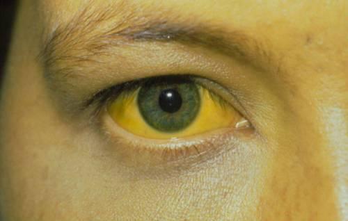 Желтизна глазных склер
