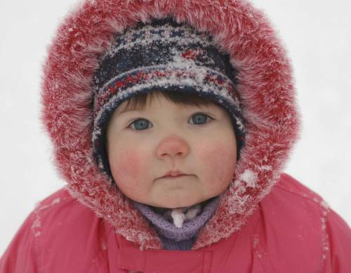 Аллергия на мороз у ребенка