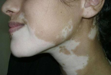 Белые пятна на лице