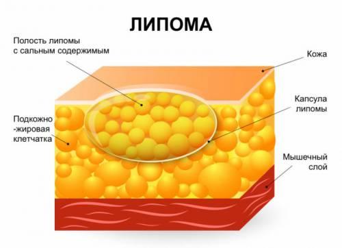 Образование жировика
