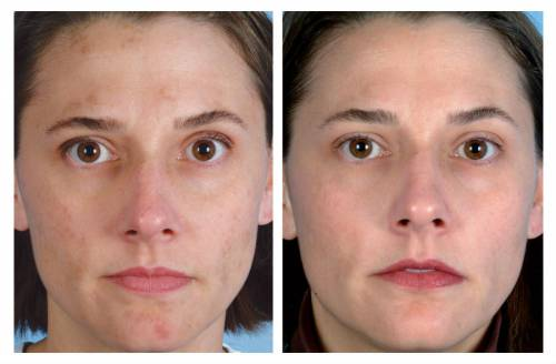 До и после дарсонвализации лица