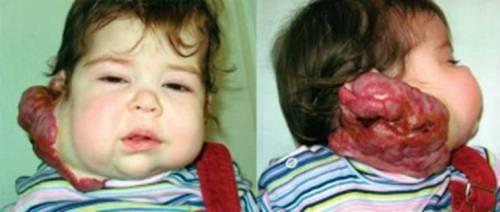 Обширная гемангиома у ребенка