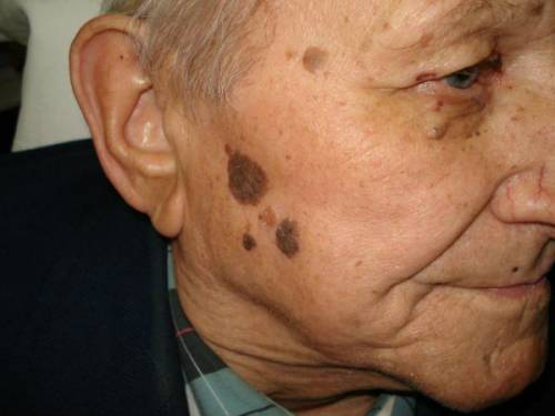 Кератома на лице