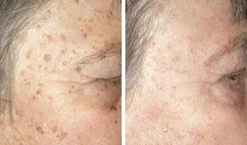 До и после лечения кератом