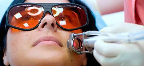 Лазерное удаление родинки на лице