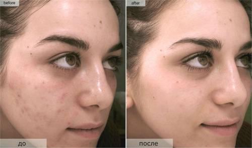 До и после лечения прыщей Роаккутаном
