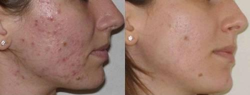 До и после лечения прыщей