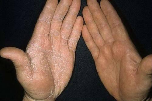 Шелушение кожи ладоней