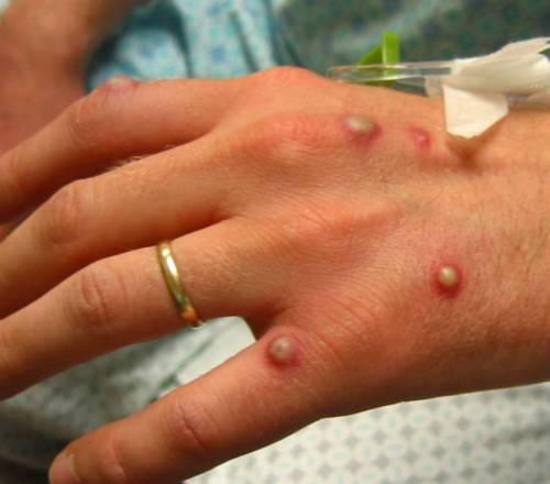 Гнойная сыпь на кистях рук